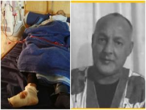 El prisionero político saharaui Mohamed Ayoubi sufre la amputación de dos dedos