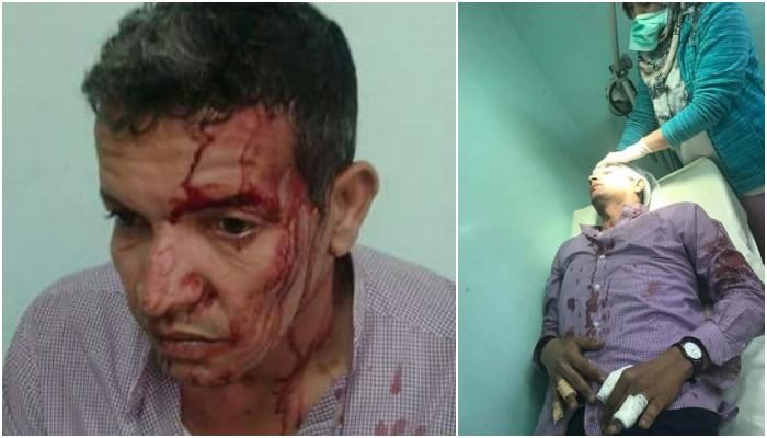 Saharaui atacado por colonos marroquíes – POR UN SAHARA LIBRE .org